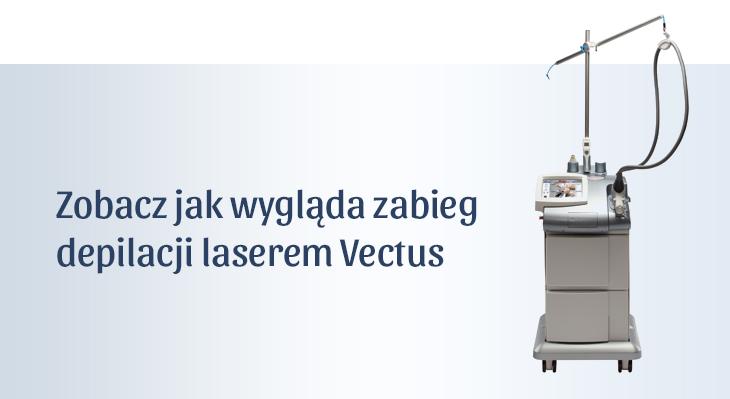 Przebieg zabiegu depilacji Laserem Vectus
